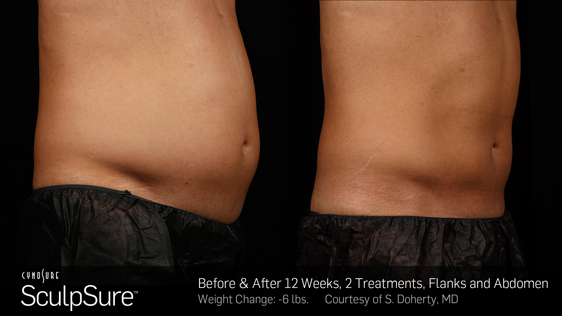 BA-SculpSure-S-Doherty-2TX-12WKs
