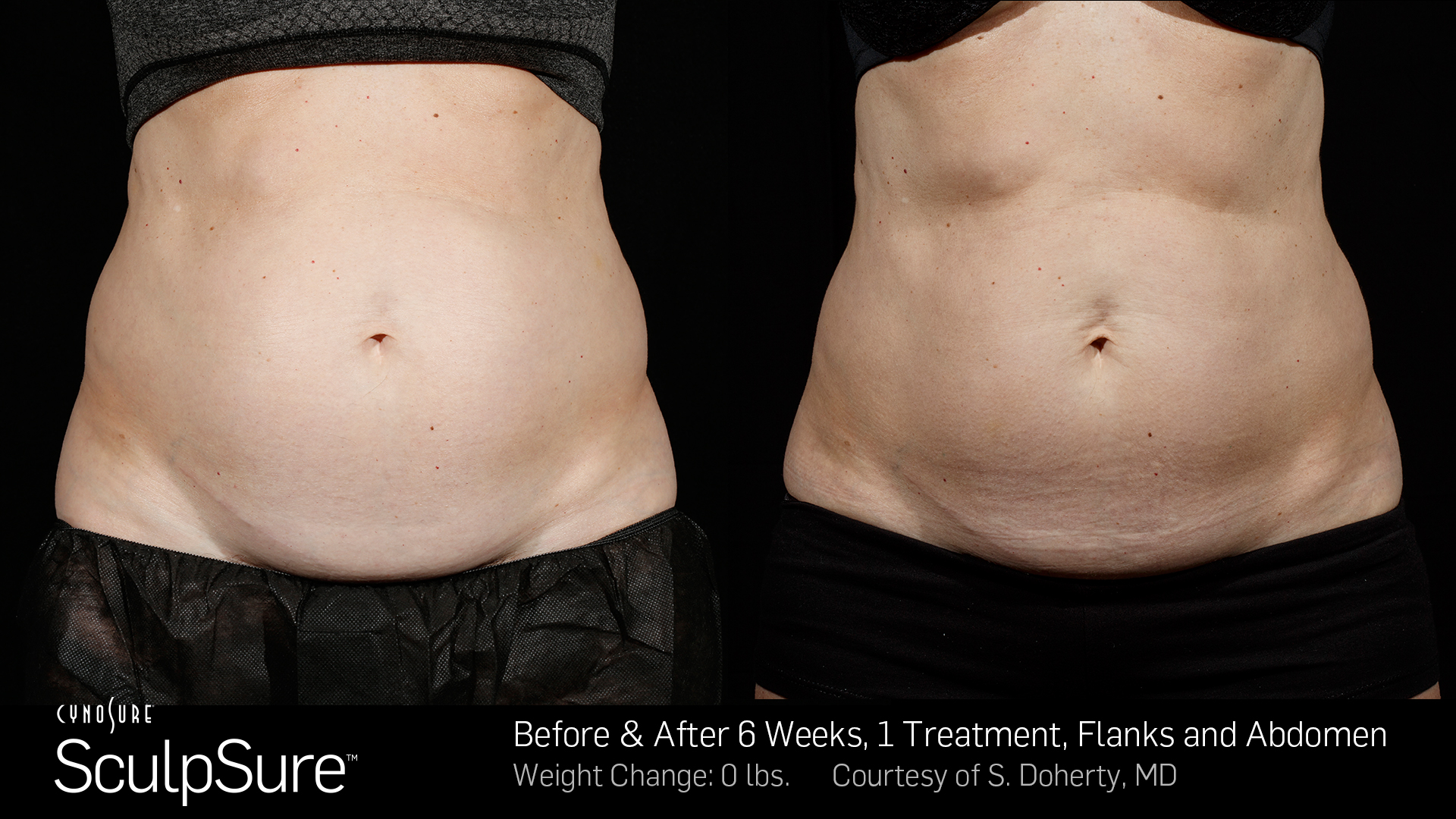 BA-SculpSure-SBS-Doherty-1TX-6Wks-2