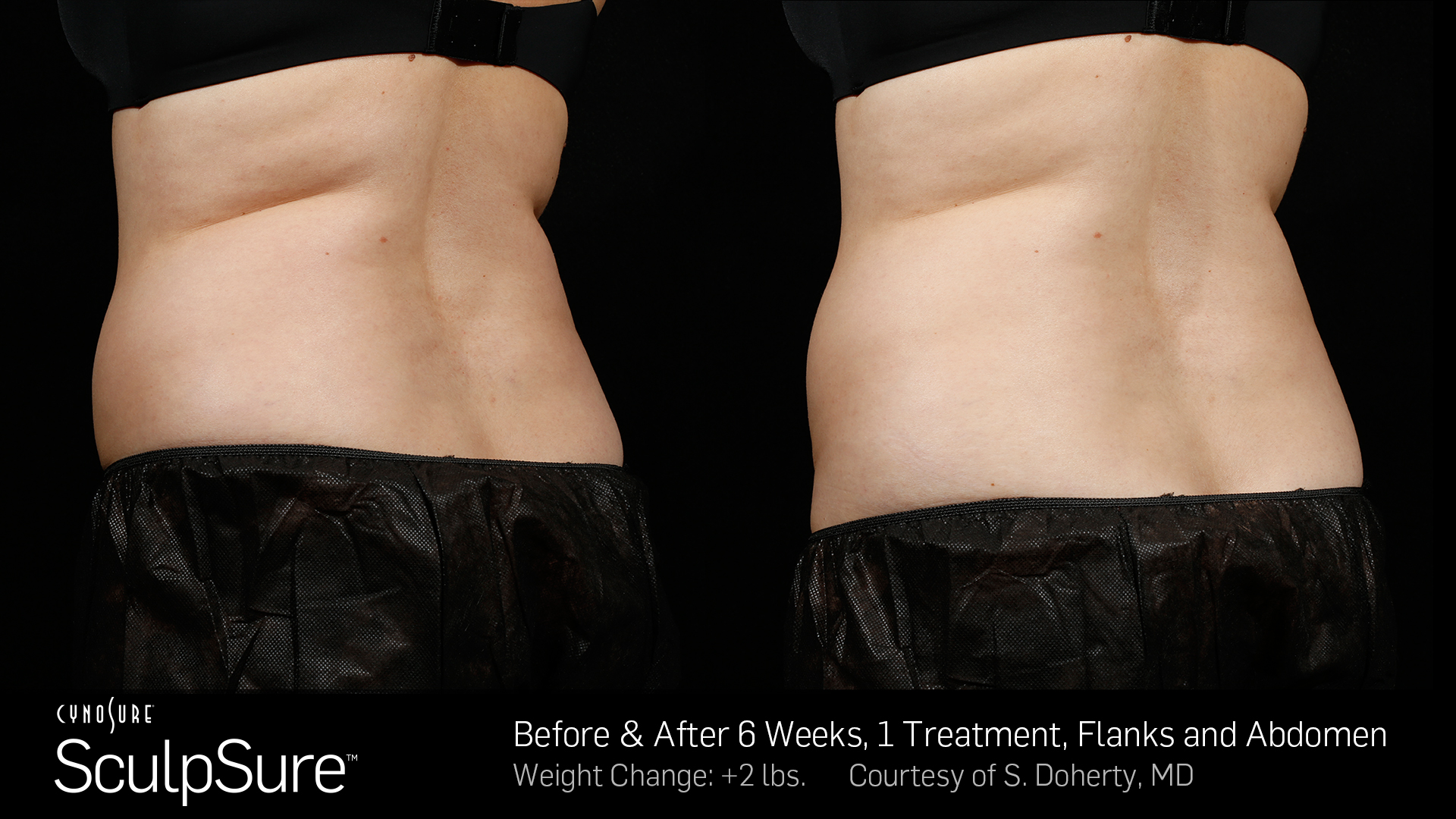 BA-SculpSure-SBS-Doherty-1TX-6Wks-3