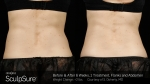 BA-SculpSure-S-Doherty-1TX-6WKs