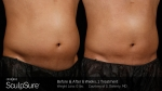 BA-SculpSure-S-Doherty-Post1Tx-6weeks-05