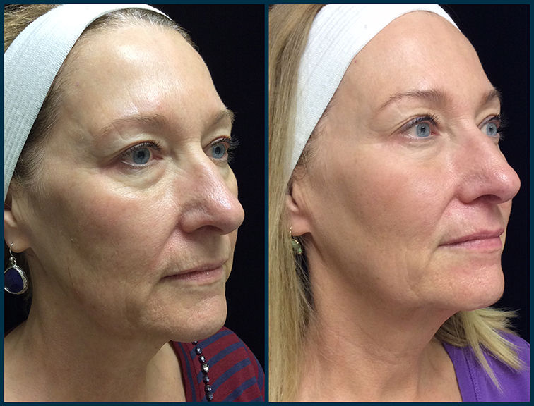 SP3_Ultherapy_3mo