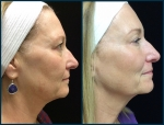 SP1_Ultherapy_3mo