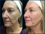 SP2_Ultherapy_3mo